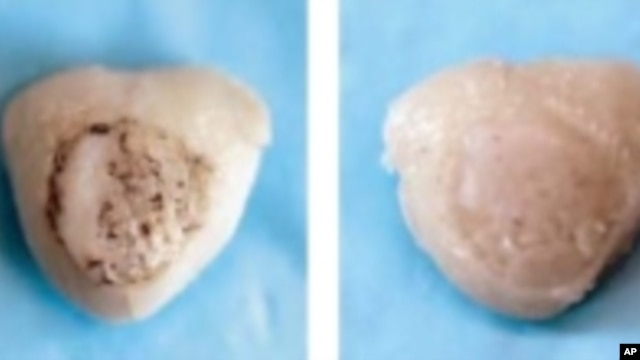 Various stages of cartilage growth on scaffold. The final image on the right shows naturally forming cartilage for comparison.