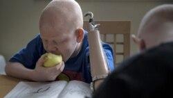 Albinos no Uíge queixam-se de discriminação - 3:00