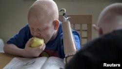 Mwigulu Matonage Magesa, enfant albinos de 12 ans, victime d'amputation en Tanzanie. Il est aujourd'hui en sécurité à New York. 21 septembre 2015, REUTERS / Carlo Allegri