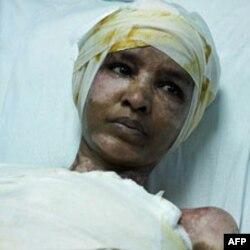 Cô Mullah đang nằm bệnh viện tại Tripoli vì bị phỏng khắp đầu và mình