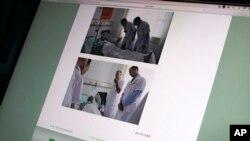 Gambar ini ditampilkan di layar di Beijing, Minggu, 9 Juli 2017, menunjukkan foto yang diambil dari situs resmi Rumah Sakit Pertama China Medical University di Shenyang, Cina utara, menunjukkan Dr. Markus W. Buchler dari Jerman (atas) dan Dr. Joseph Herman dari Amerika (dari Universitas Heidelberg), MD Anderson Cancer Center di University of Texas (bawah), bertemu dengan peraih hadiah Nobel Perdamaian China Liu Xiaobo di rumah sakit tersebut. (AP Photo / Andy Wong)