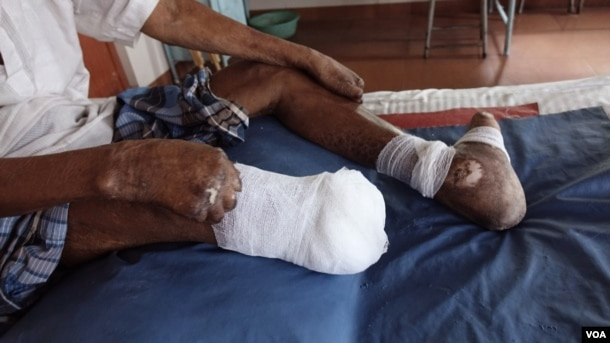 An amputated leg, claw toes and claw hands of leprosy patient Gopal Bag are seen at the Leprosy Mission Trust India hospital, Kolkata, Sept. 20 2016. (M. Hussain/VOA)