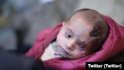 Karim, un bébé syrien est devenu borgne après un raid du régime dans la Ghouta orientale. (Twitter)