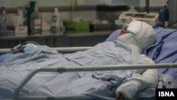 یکی از قربانیان اسیدپاشی اصفهان