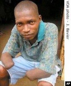 Une victime amputée par les rebelles du RUF en Sierra Leone