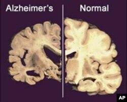 Não của bệnh nhân bị Alzheimer (trái) so với não của người không mắc Alzheimer