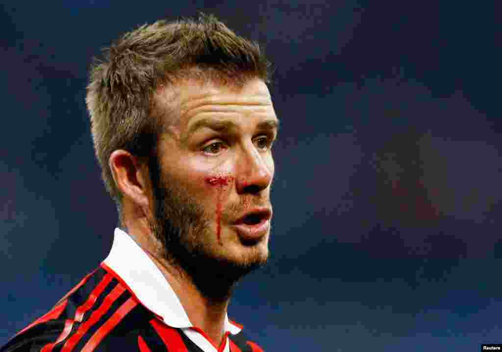 David Beckham post-injury during the Italian serie A soccer match against Chievo in Milan, March 14, 2010.