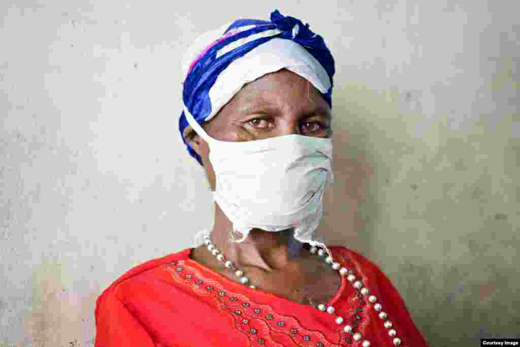 The woman with the surgical mask, hiding her terrible injuries (Photo: E. O'Brien Photography)