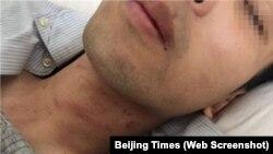 Hình ảnh nạn nhân được báo chí Trung Quốc đăng tải.