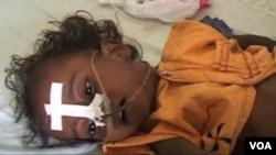 بھارت کی شمالی ریاست اترپردیش میں دماغ کی سوزش کی وبا