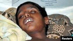 الہ آباد کے ایک اسپتال میں داخل وبا سے متاثرہ بھارتی بچہ