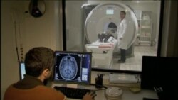 Israeli Study: Male, Female Brains More Similar Than Thought