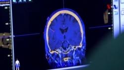 Beyin xərçənginin müalicəsində dönüş yarada biləcək araşdırmalar