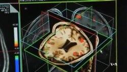 کنترل بیقراری بیماران مبتلا به آلزایمر با یک ترکیب جدید دارویی