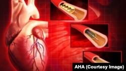 بندش شریانهای قلبی و مشکلات ناشی از آن همه ساله سبب مرگ ۳۷۰ هزار نفر در امریکا میشود.