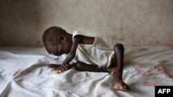 Birleşmiş Milletler'den Güney Sudan İçin Açlık Uyarısı