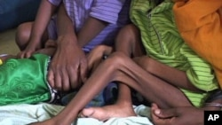 Malnourished children in Ethiopia