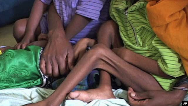Malnourished children in Ethiopia