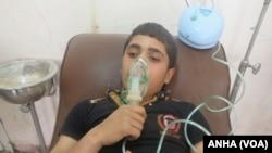 시리아 반군이 포격을 가한 알레포 지역의 쿠르드 소년이 7일 화학무기 부상 징후를 보이고 있다.