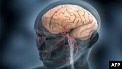 Động kinh do sự phát sinh quá độ điện trong não bộ khiến cho một người có các cử động bất thường hay bị hôn mê hoặc trong một số trường hợp có các cảm giác bất thường.