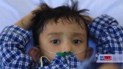 صد ها کودک افغان مبتلا به سوراخ قلب در چین تداوی میشوند