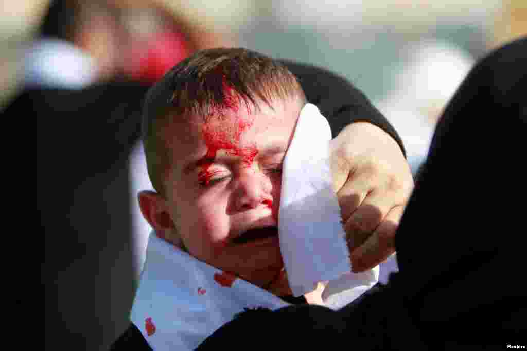 A Shi'ite Muslim child reacts as he bleeds after he was cut on the forehead with a razor during a religious procession to mark Ashura in Nabatiyeh town, southern Lebanon.