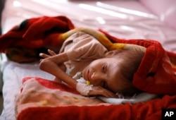 Foto seorang anak yang dirawat akibat malnutrisi di salah satu rumah sakit perawatan gizi di Sana'a, Yaman, 24 Januari 2016. (Foto: dok).