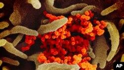 美國國立過敏與傳染病研究所從一個美國病人身上分離出來的導致新冠病毒的SARS-CoV-2病毒(橙色)。