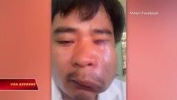 Human Rights Watch: Việt Nam phải ngưng tấn công các nhà hoạt động