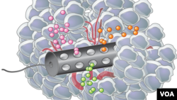 Placed in the tumor, the device releases microdoses of different drugs, each affecting nearby cancer cells. (Drawing by Eric Smith, courtesy Langer Lab - MIT)