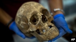 In this Tuesday, Aug. 28, 2018 photo, a victim's skull is examined during the classification process by anthropologists following the exhumation of a mass grave found in 2018 at the cemetery of Paterna, near Valencia, Spain.
