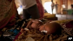 Bé Zara Mahamat ở Chad, bị suy dinh dưỡng, tiêu chảy, và sốt đang được điều trị qua một ống truyền thức ăn qua mũi.