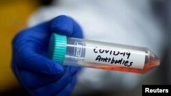 实验室研究新型冠状病毒抗体的试管。(2020年3月30日)