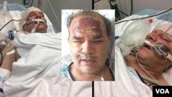 سه عکس از آخرین وضعیت آقای اسانلو در بیمارستان.