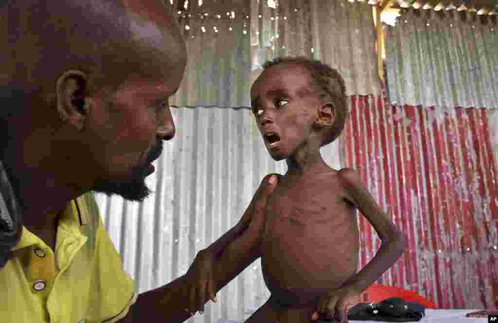 លោក Ali Madey លើកកូនប្រុសដែលខ្វះជីវជាតិរបស់ខ្លួនដែលមានឈ្មោះថា Mohamed Ali អាយុប្រាំឆ្នាំនៅជាយក្រុង Mogadishu ប្រទេសសូម៉ាលី។