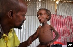 FILE - Father Ali Madey holds his malnourished child Mohamed Ali, 5, in their camp for the displaced on the outskirts of Mogadishu, Somalia, May 25, 2017.