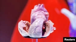Plastinated human heart on display at the European Society of Cardiology meeting, Amsterdam, Sept. 2, 2013.