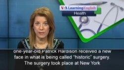 Man Gets Historic Face Transplant