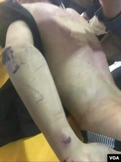 赵鑫遗体背部伤痕累累