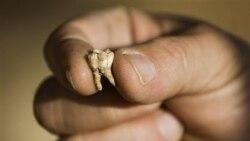 دندانهای کشف شده انسان ۴۰۰ هزار سال پيش در اسراييل شبيه انسان امروز است