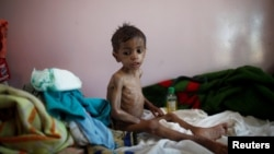 2016年10月30號一個嚴重營養不良的也門男孩在首都薩那的治療中心