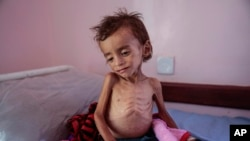 资料照片:在也门一家医院中的一个因饥饿而营养不良的儿童。(2018年10月1日)