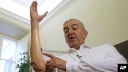 Seorang penyandang disabilitas menggunakan lengan robotik yang bisa digunakan untuk memegang benda-benda (foto: ilustrasi).