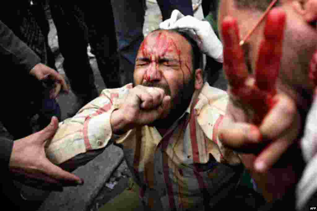 A wounded anti-government protestor is tended during clashes in Cairo. Gangs of thugs supporting President Hosni Mubarak attacked reporters, foreigners, and human rights workers and the army rounded up foreign journalists on Thursday. (Sebastian Scheiner/