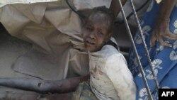 Gambar yang dirilis oleh Doctors Without Border (MSF), ini menampilkan seorang anak yang terluka akibat serangan udara militer Nigeria di wilayah Rann, 17 Januari 2017. (AFP PHOTO/Médecins sans Frontières (MSF) )