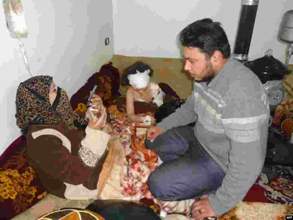 Раненная во время протестов 5 января девочка. Хомс. 6 января 2012г.