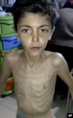 An emaciated Syrian boy receives treatment at a local field clinic in Madaya, Syria in this image made from video posted online on Jan. 8, 2016 by Madaya Medical Corps.