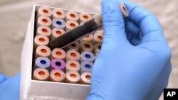 Một nhà khoa học nghiên cứu các yếu tố liên quan đến cuộc thử nghiệm về máu mới, tại Đại học Duke, ở Durham, North Carolina
