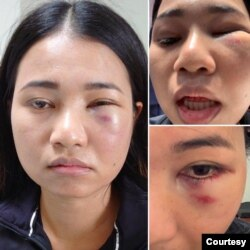 Mantakarn, a Thai-American woman who was assaulted while riding the BART train in San Francisco, CA. (Credit: Dion Lim)