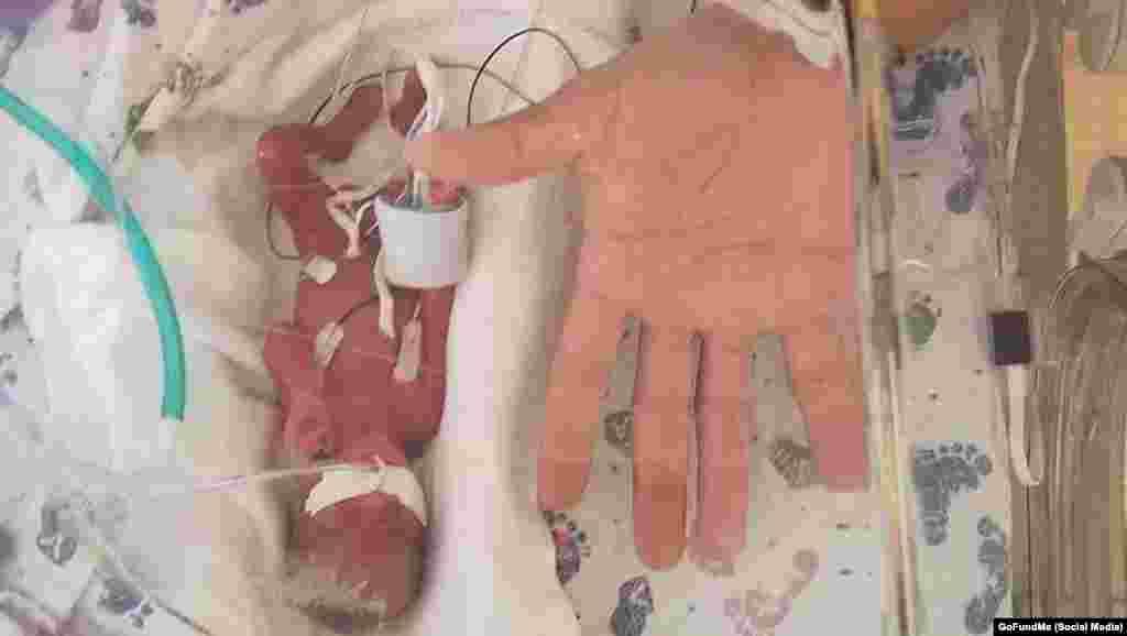 یک نوزاد پسر در ایالت «آیووا»، پس از گذراندن تنها ۲۳ هفته در رحم مادر، متولد شد. این نوزاد که نام او را «جیدن وسلی» گذاشته اند، کمتر از ۳۷۰ گرم وزن دارد.